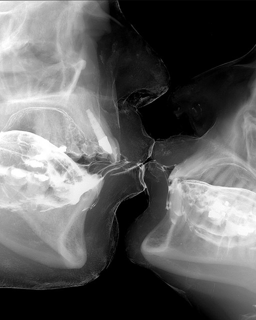 X-ray Kiss from Wim Delvoye